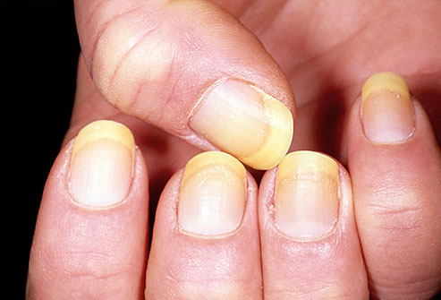 dermnet_photo_of_yellow_nails.jpg
