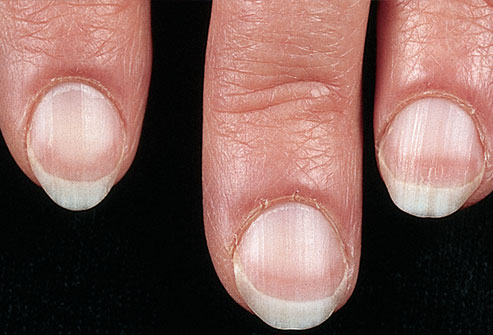 mh_photo_of_pale_fingernails.jpg